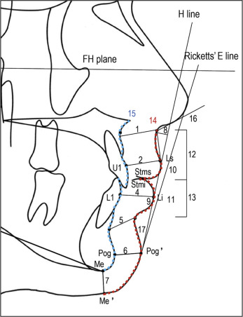 Perioral soft tissue evaluation of skeletal Class II