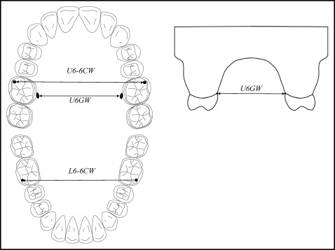 Relationship between molar occlusion and masticatory
