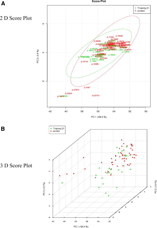 Metabolomic analysis for first-trimester Down syndrome