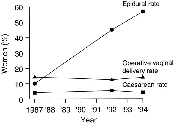 Epidural analgesia need not increase operative delivery