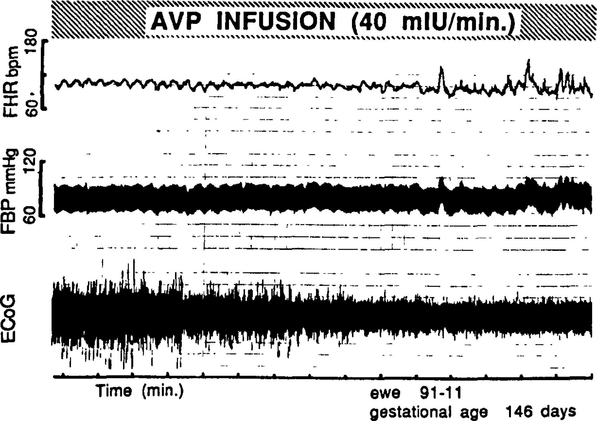 Experimentally induced intermittent sinusoidal heart rate
