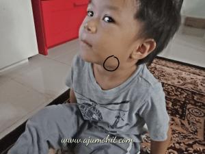 benjolan kelenjar di leher anak