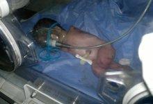 صورة الديوانية : ولادة طفل من دون الاطراف العليا