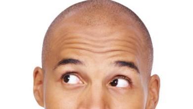 صورة دراسة: الرجل الأصلع أكثر تأثيراً وأجدر بالثقة