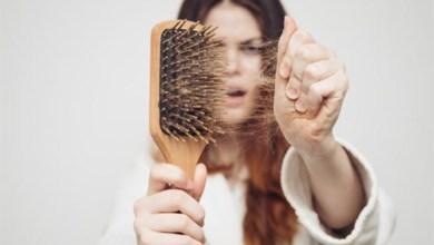 صورة 6 نصائح لعلاج مشكلة تساقط الشعر بعد الولادة