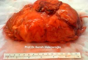 tümörün mediastenden çıkarılması