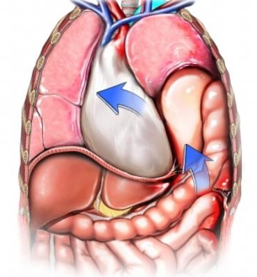 diyafram ameliyatı, riskleri, yatış süresi