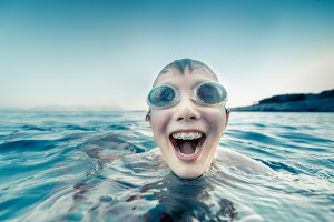 braces, sports, swimming