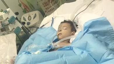 Photo of وفاة الطفلة السعودية ترف .. و والدها يؤكد : لن أدفن جثتها
