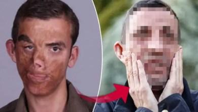 Photo of بعد سنوات من العملية .. كيف أصبحت حياة أول رجل في تركيا أجريت له عملية نقل وجه ؟ ( فيديو )