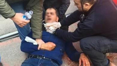 Photo of تركيا : سوري يهاجم طليقته بسكين ثم يجرح عنقه خلال محاول الشرطة اعتقاله ! ( فيديو )