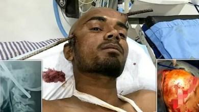 Photo of هندي ينجو من الموت بأعجوبة بعد اختراق قضيب حديدي رأسه