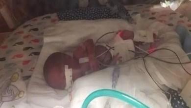 صورة أمريكا : طفل ينجو بعدما ولد بوزن 360 غرام ( فيديو )