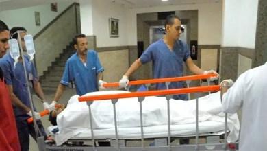 Photo of أطباء في مصر يستأصلون ورماً نادراً يبلغ وزنه 15 كيلو غرام من بطن مريض