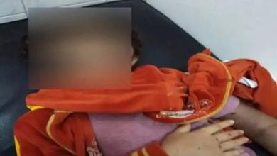 Photo of تعرض طفلة مصرية للحرق و التعذيب على يد خالتها