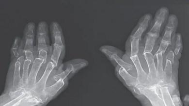 """صورة حالة طبية نادرة تسبب """" اختفاء """" عظام أصابع امرأة تركية"""