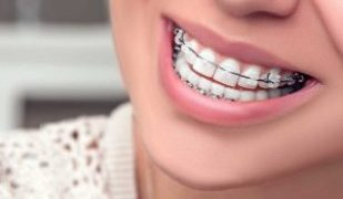 تقويم الأسنان 2021