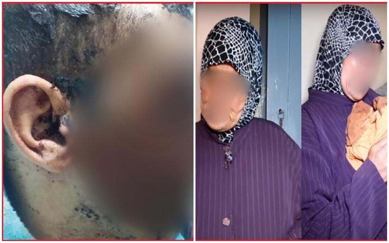 الرباط. سيدة تتهم الشرطة بالتقاعس في قضية الاعتداء على ابنها. وولاية الأمن تكشف ما حدث
