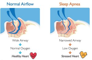 Snoring and Sleep Apnea Huntsville, Alabama Sleep Clinic