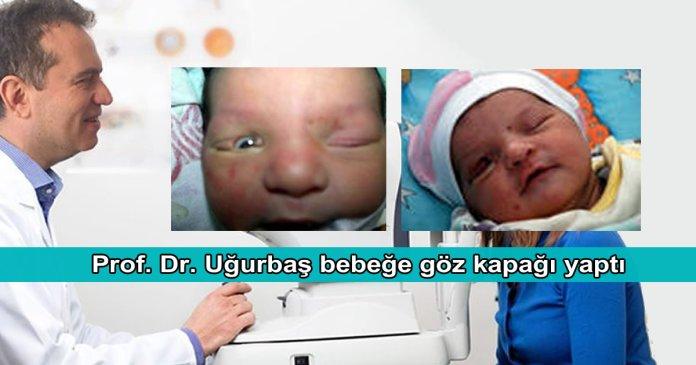 Bebeklerde Goz Kapagi Bozukluklari