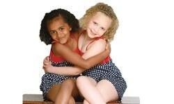 Siyah-beyaz ikizler 7 yaşında