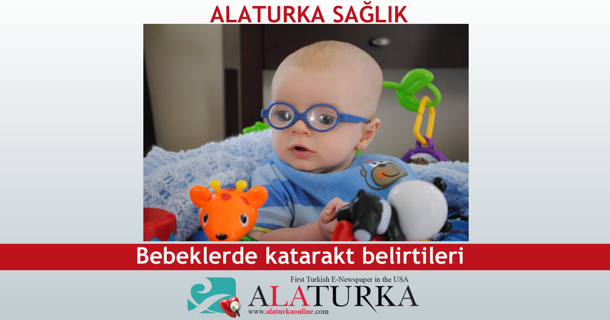 Bebeklerde katarakt belirtileri