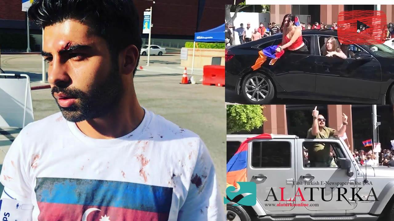 Ermeniler Los Angeles'ta Azerbaycan Türklerine Saldırdı! Biri kadın 7 yaralı!
