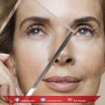 متى يتقشر الوجه بعد التقشير الكيميائي
