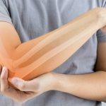 اعراض هشاشة العظام وكيف تكون الوقاية من هشاشة العظام