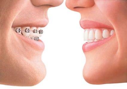 تقويم اسنان زينه والفوائد العامة للتقويم وكم من الوقت يحتاج