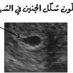 شكل الجنين في الشهر الاول بالسونار