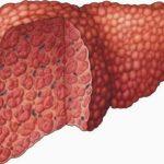 تجربتي مع دهون الكبد