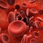 نقص الصفائح الدمويه عند الرجال اسباب واعراض وطرق علاج