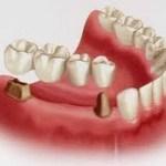 تجربتي مع جسر الاسنان