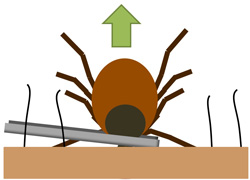 Photo of how to remove a tick safely