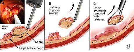A, B, C, tecnica endoscopica per rimozione frammentaria di un polipo grande con una corrispondente visione endoscopica.