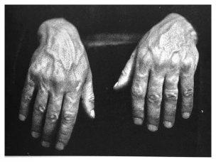 hands-schnabel