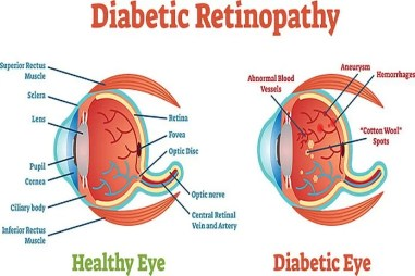 alcohol and diabetic retinopathy