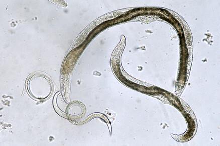 Panel gastrointestinal (bacterii, paraziti, virusuri) | Bioclinica