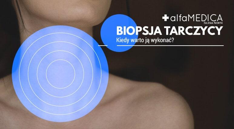 biopsja tarczycy
