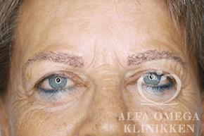 Efter hårtransplantation af øjenbryn