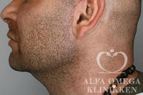 Efter hollywood lift og fjernelse af løs hud i ansigtet hos Alfa Omega i København