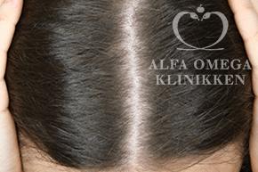 Efter 6 Rephair hårbehandling med Mesoterpi til hår