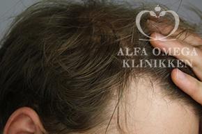 Efter behandling af tyndt hår