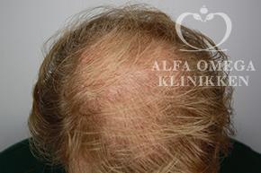 Før behandling med Rephair® hårbehandling i København