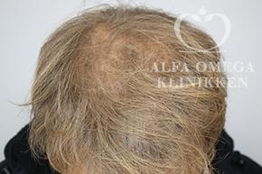 Efter 3 behandlinger med Mesoterapi til hår