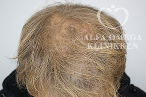 Efter behandling med Mesoterapi til hår