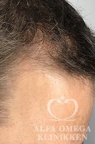 Efter behandling mod hårtab med Rephair® hårbehandling