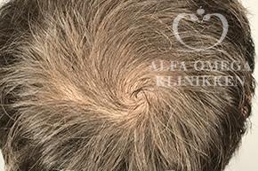 Før behandling med RepHair til hår