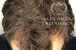 Efter behandling med Rephair® hårbehandling mod hårtab